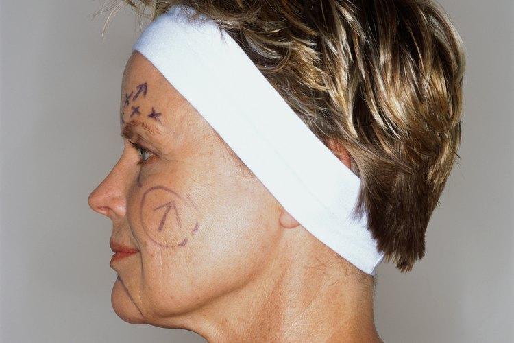 Muchas personas eligen hacerse otros procedimientos al mismo tiempo que el lifting facial, pero esto puede incrementar significativamente el costo de la cirugía.