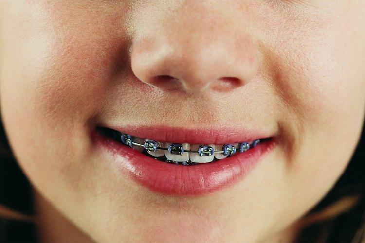 Si el espacio se mantiene después de que los dientes permanentes de tu hijo salen, probablemente no va a desaparecer sin un tratamiento ortodóncico.