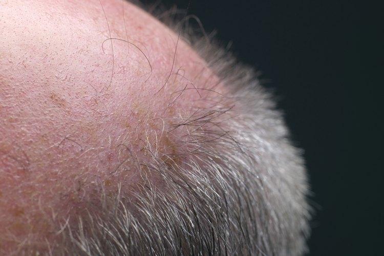 Cómo hacer crecer rápido el pelo en un parche de calvicie en la cabeza.