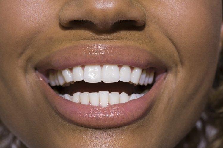 El logro de una sonrisa blanca y brillante puede ser fácil con un par de trucos caseros.