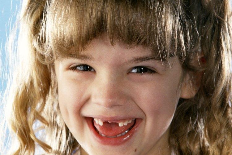 Es común que los niños desarrollen espacios entre sus dientes a medida que crecen. Por lo general, estas diferencias son sólo temporales.