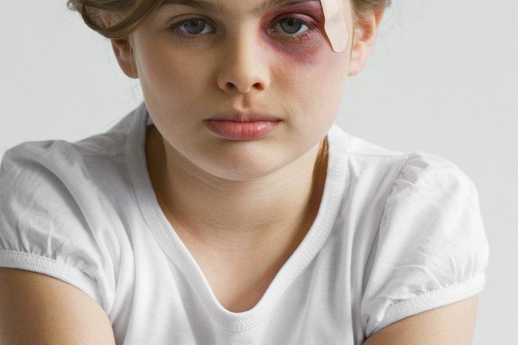 El abuso físico, emocional y sexual puede dejar cicatrices para toda la vida.