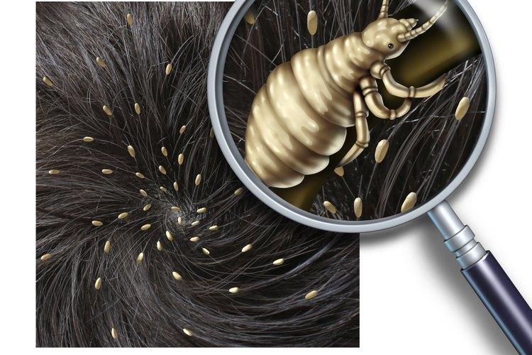 Los piojos tienen una forma desagradable de propagarse más allá del cuero cabelludo.