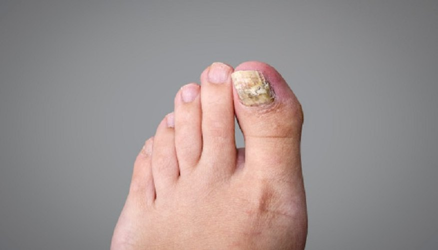 Toenail fungus can be treated, but you should also take steps to prevent it in future.