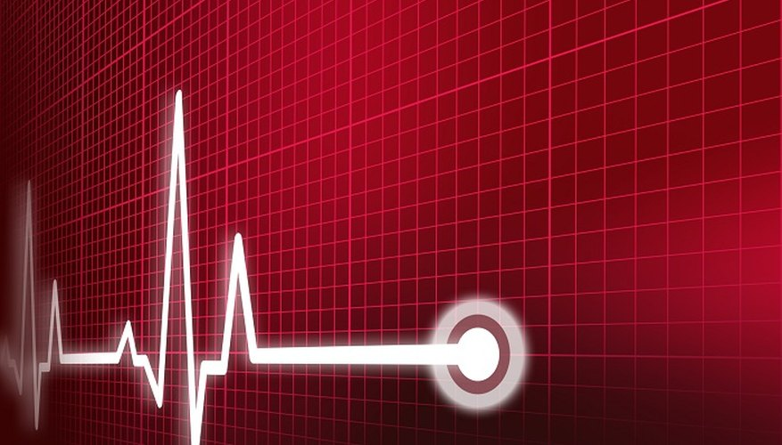 A GP or practice nurse can test your pulse rate.