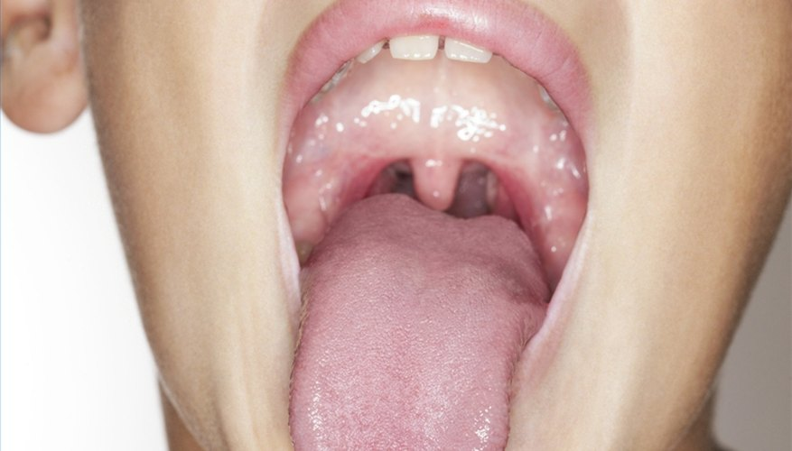 Remove Tonsil Stones With a Blunt Object