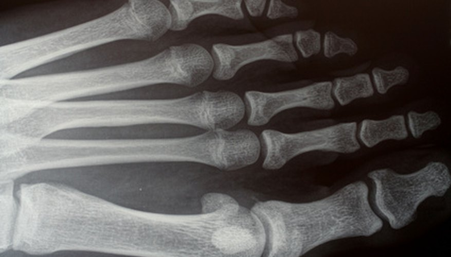 A bone density test, which is similar to an X-ray, can help detect osteoporosis.