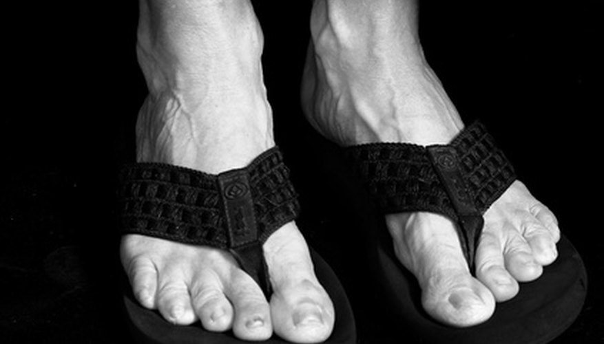 Many people develop corns on their feet.