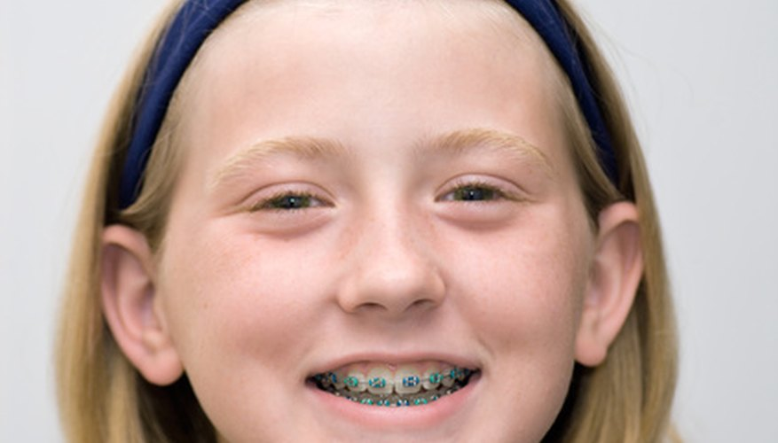 Removing glue from braces can be done at home.