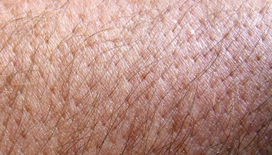 Pores can become more open after waxing.