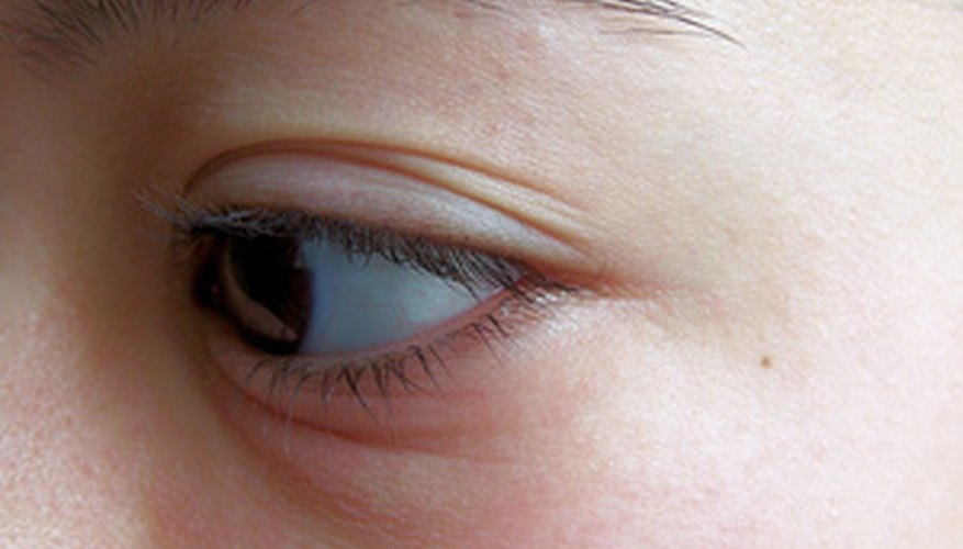 An insect bite in the eye area is especially bothersome.