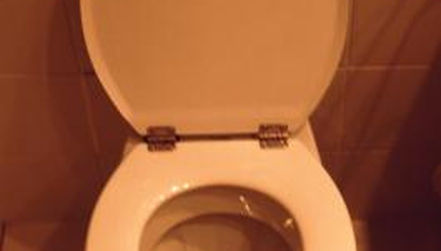 Horsehair worms and moth fly larvae occasionally show up in toilet bowls.