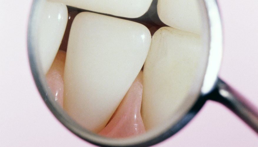A close-up view of altitude's effects on your teeth.