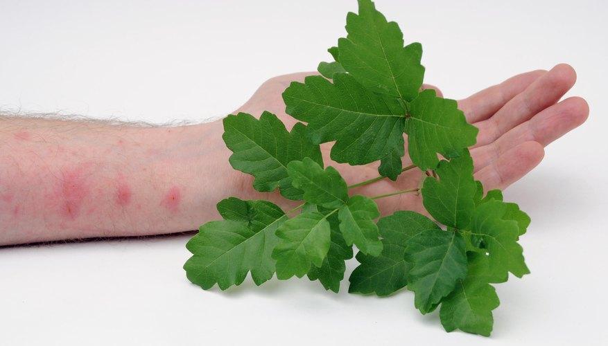 Poison oak causes a skin rash.