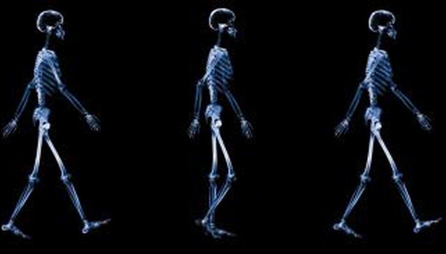 Gait training can improve walking technique.