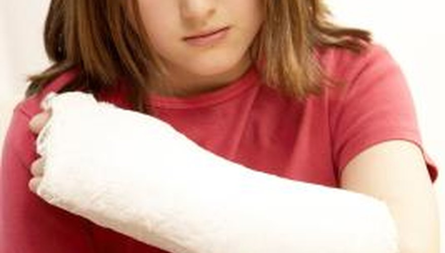 Arm casts are tough so they can protect your arm from further injury.