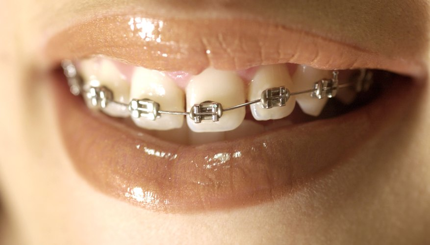 Swimming is safe with fixed or removable braces.