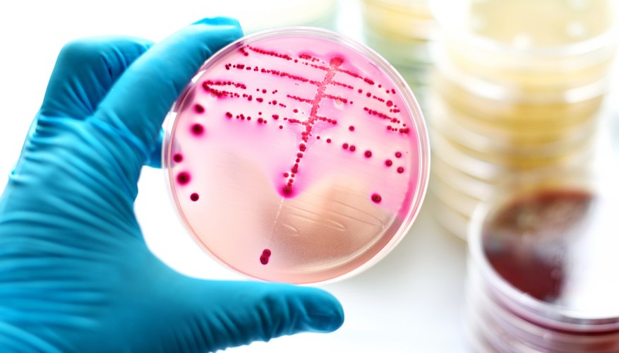 what three conditions are ideal for bacteria to grow