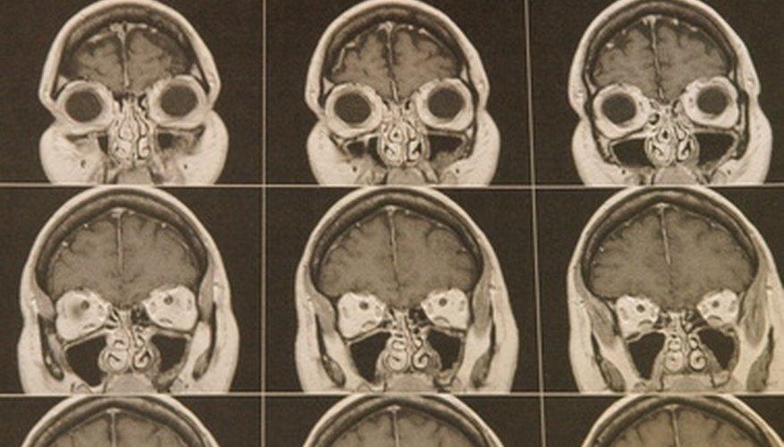 Los nervios salen del cráneo a través de aberturas llamadas foramen.