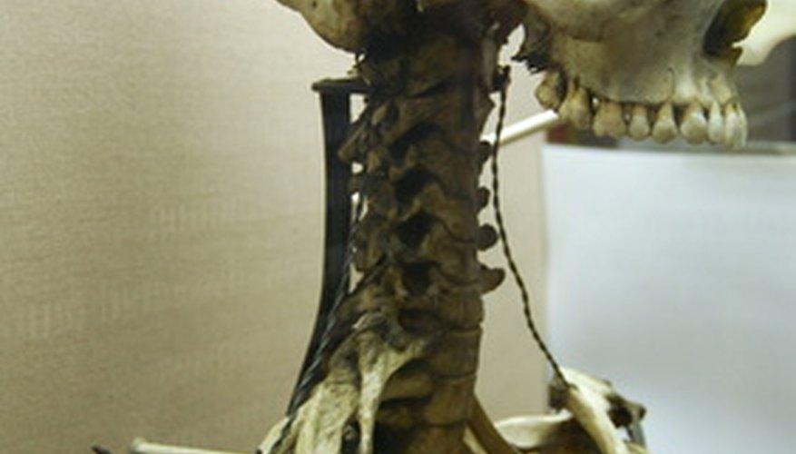 La antropología forense se basa en el estudio de los restos óseos de un cadáver.
