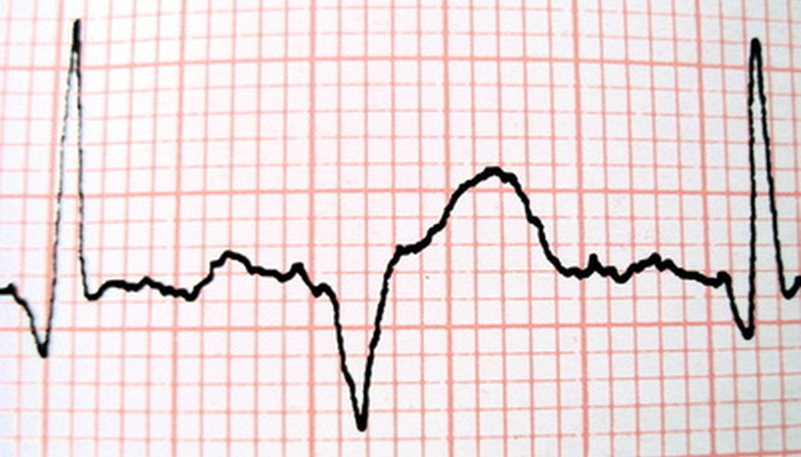 Doctors interpret EKG readouts, but the test is administered by a technician.