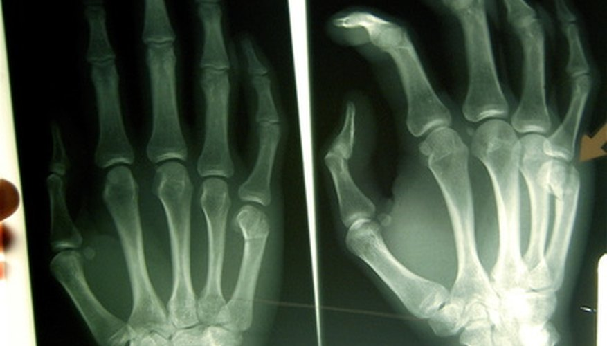 La radiología forense utiliza imágenes para investigar crímenes.