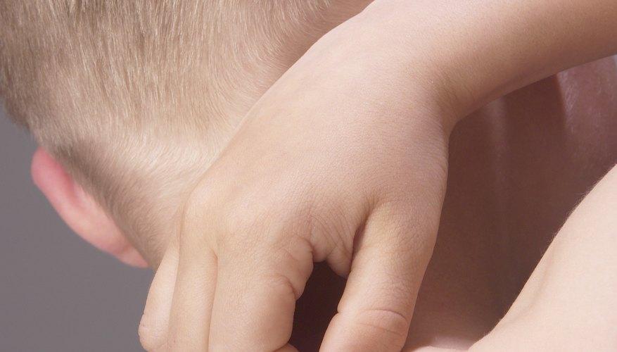 Little kid scratching his skin