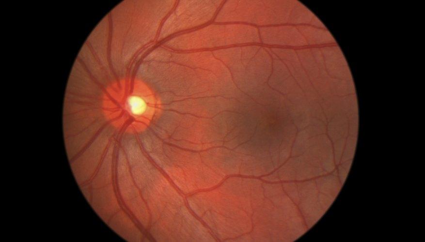 The retina.