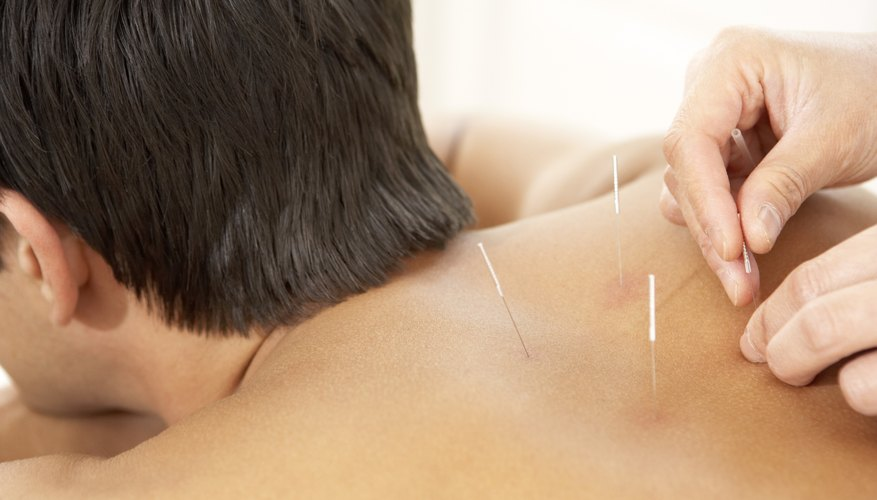 Alternative remedies, such as acupuncture