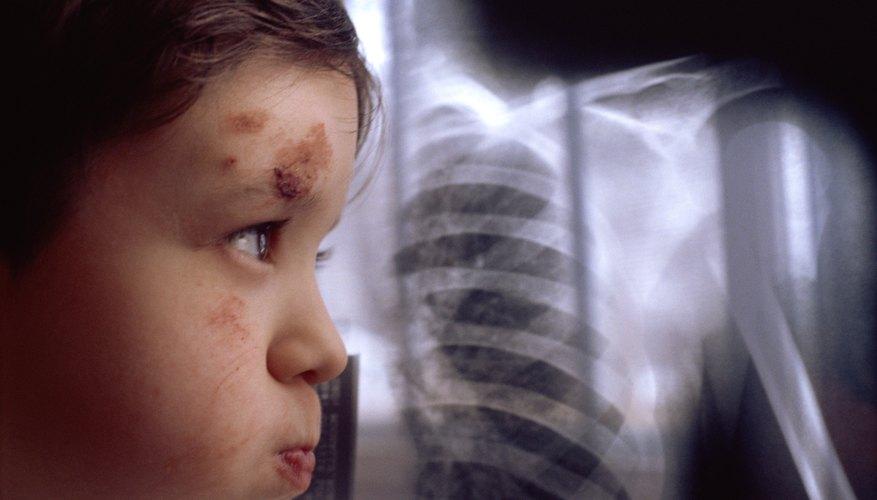 El abuso infantil y la negligencia son los peores ejemplos de una mala crianza.