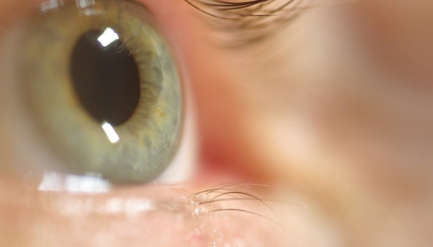 Problems with the lower eyelid may also cause the eyes to water.
