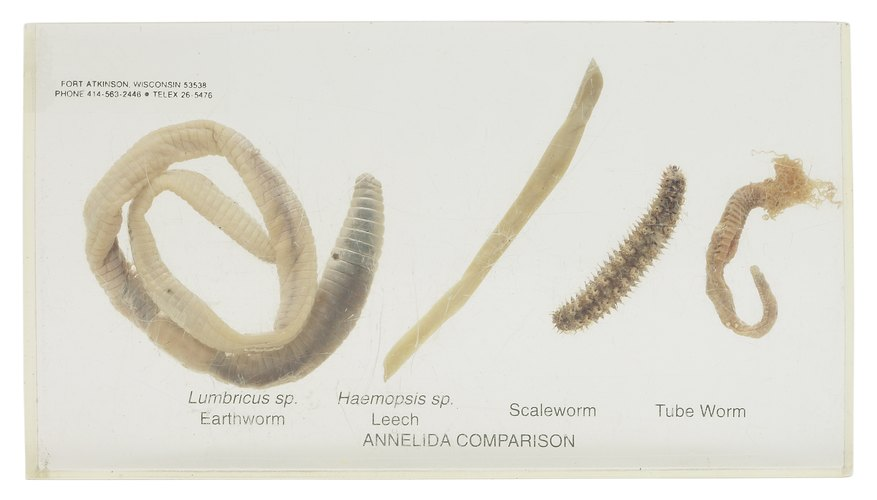 Leeches are a nuisance to swimmers, but fascinating to medical researchers.