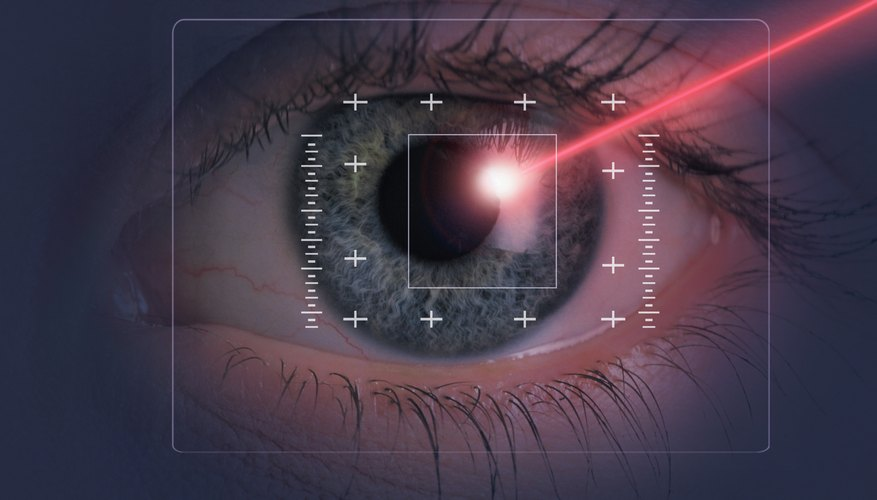 A second surgical procedure is usually required to reposition the artificial lens and correct the vision problems.