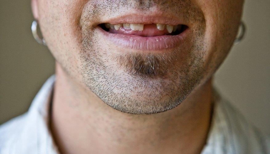 Loose or missing teeth may be a symptom of severe dental decay.