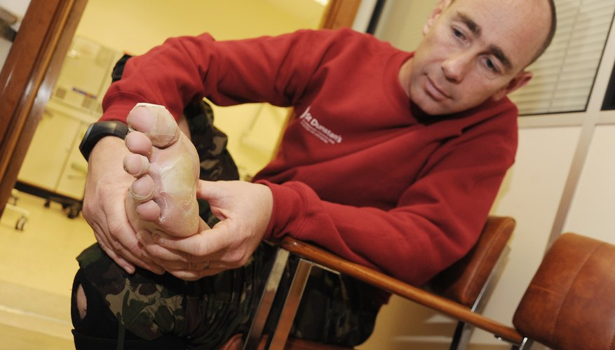 A man looks at his blistered foot