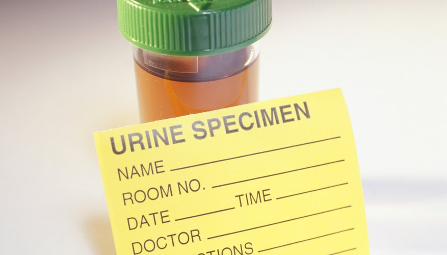 If your blood sugar level rises to a level of 180 or more, your practitioner will find glucose in your urine