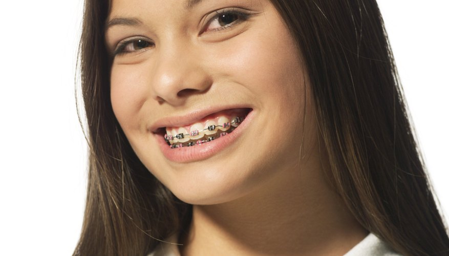 Certain foods must be avoided when wearing braces.