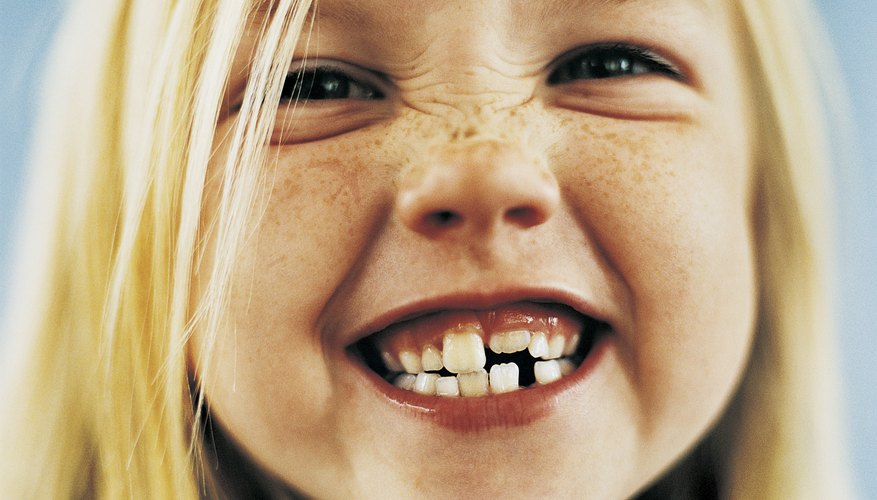 Losing teeth is a rite of passage for young children.