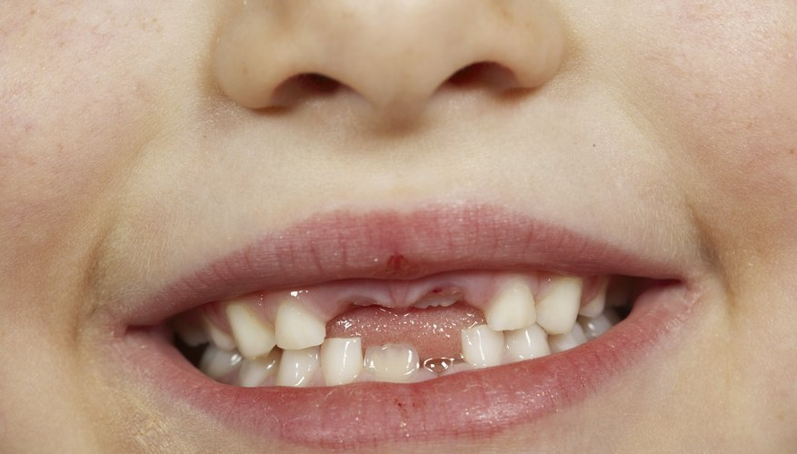 Baby teeth often have gaps to allow for growth of larger permanent teeth.