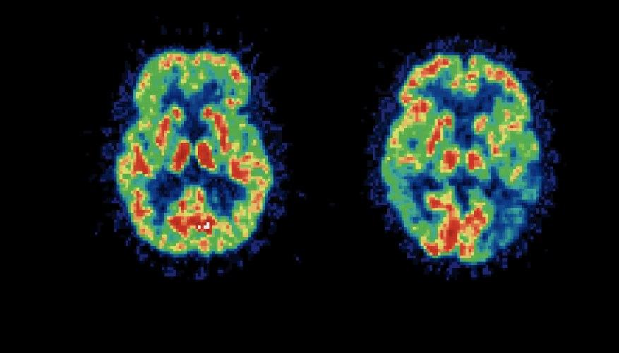 PET brain scan result comparison