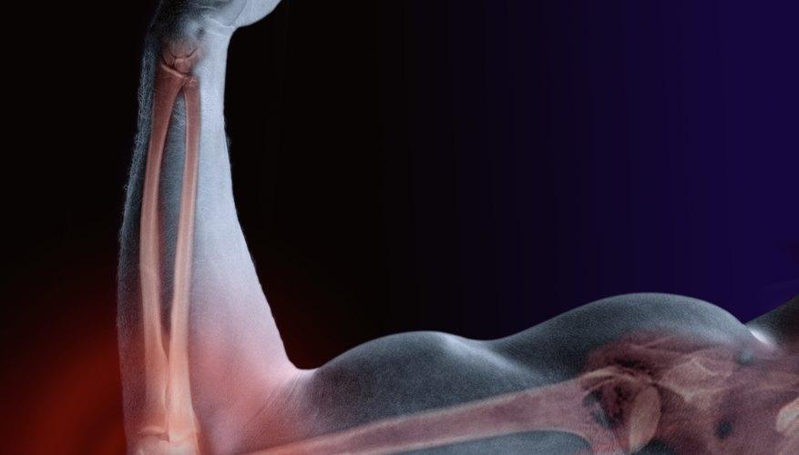 El húmero es el hueso de la parte superior del brazo.
