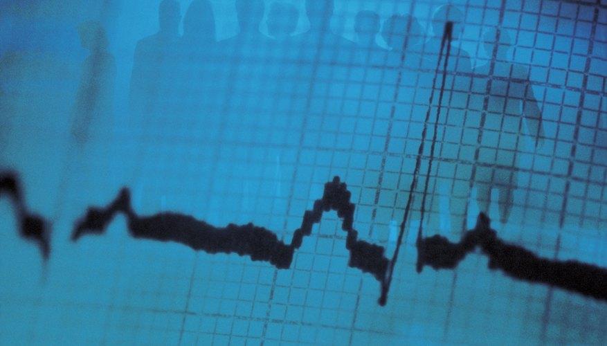 MATLAB permite el filtrado de las señales en frecuencia.