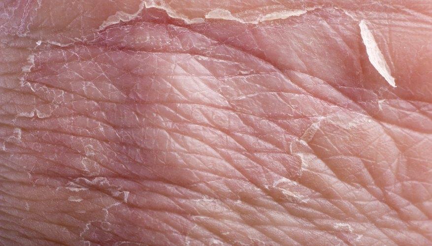 Dermatitis includes skin slaking.