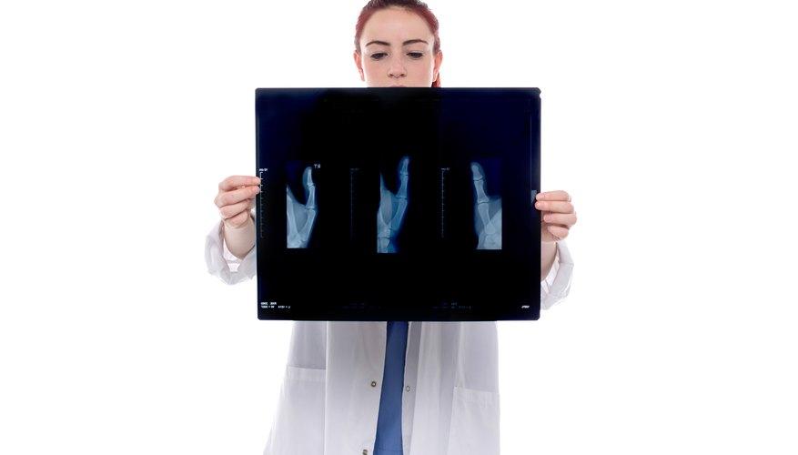 Las actividades de un radiólogo y un técnico en radiología.