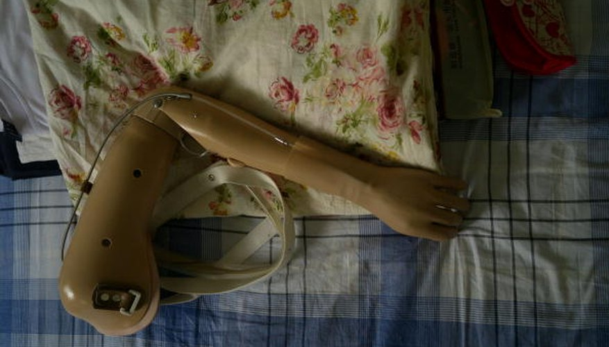 Artificial limbs are a common form of bionics.