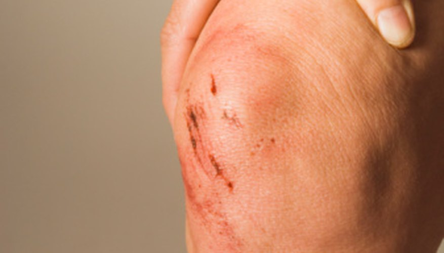 UPS has made changes to reduce injuries such as knee injuries.