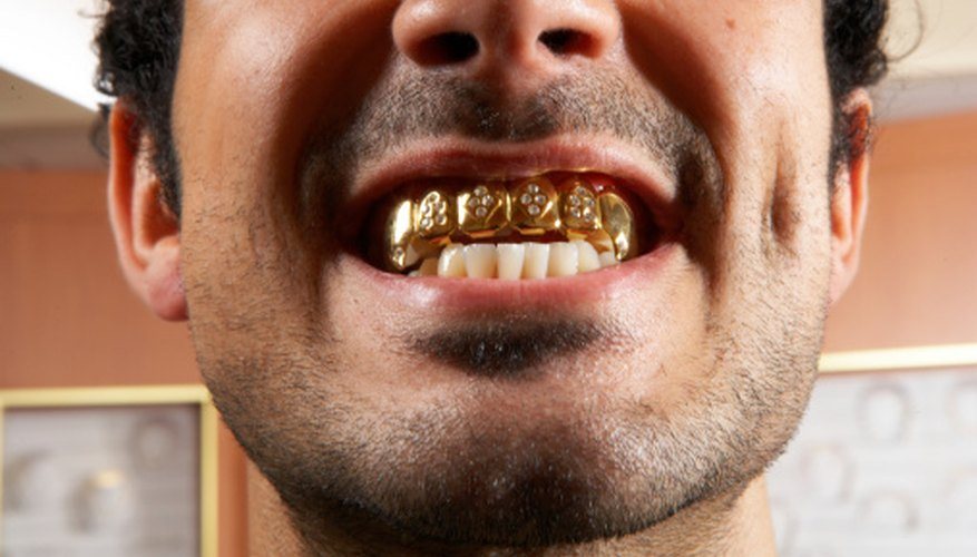 Many refiners pay cash for gold dental work.