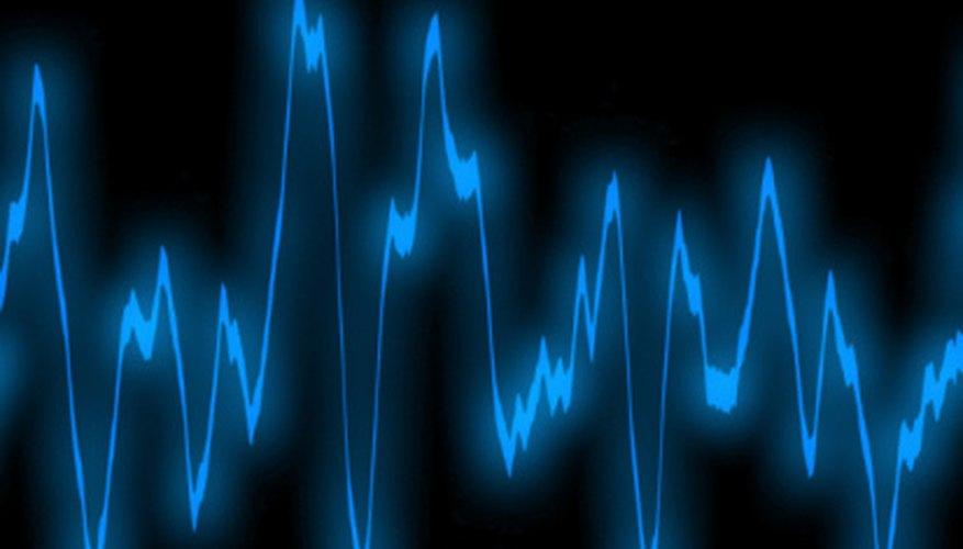 Los precios oscilan bruscamente hacia arriba y hacia abajo todos los días en los mercados financieros.