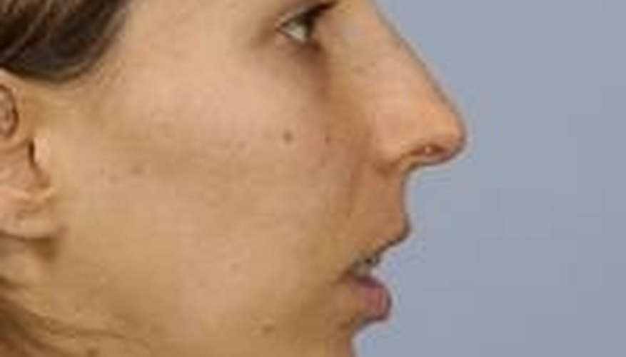 Before: http://amazingfaces.com/gallery.php?ID=33&&