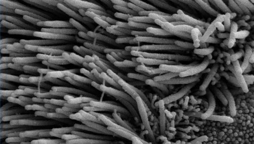 Scanning electron microscope image of cilia in lungs (public domain)